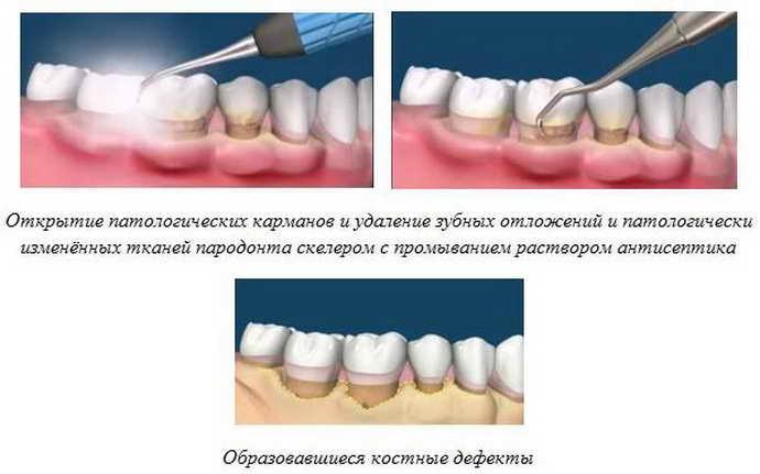 Лечение пародонтоза хирургическим путем