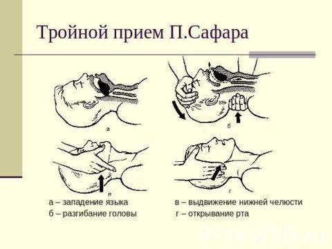 Прием Сафара для обеспечения проходимости дыхательных путей.