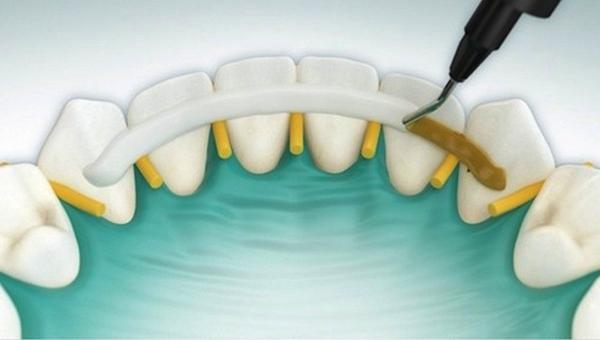временное шинирование зубов