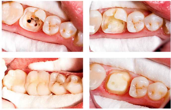 е моделей зубов из гипса в зуботехнической лаборатории