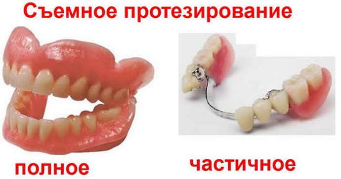 Технологии замены зубов