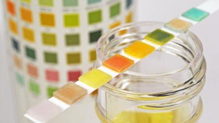 Что из себя представляет набор тест полосок для определения уровня сахара в моче