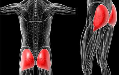 миозит ягодичной мышцы