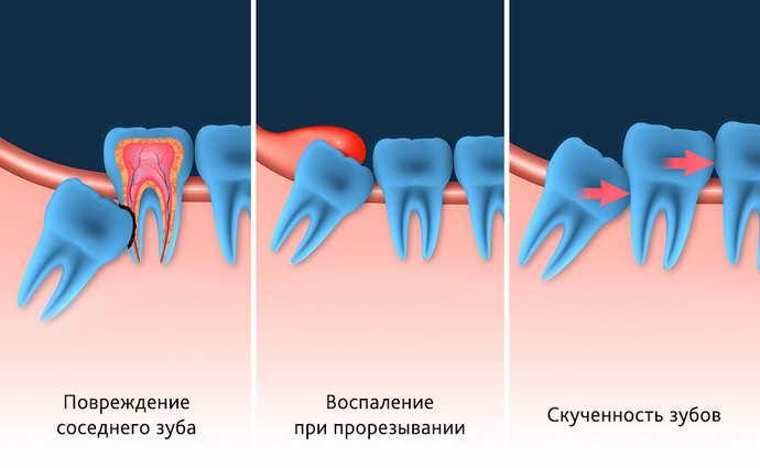 Неправильный рост зуба мудрости с наклоном на соседний зуб