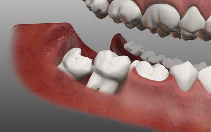 чем опасен рост зуба мудрости в зуб