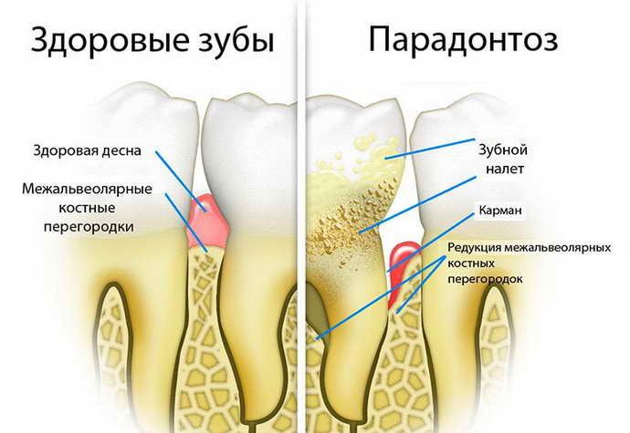 кровоточат десна и неприятный запах изо рта из-за пародонтоза