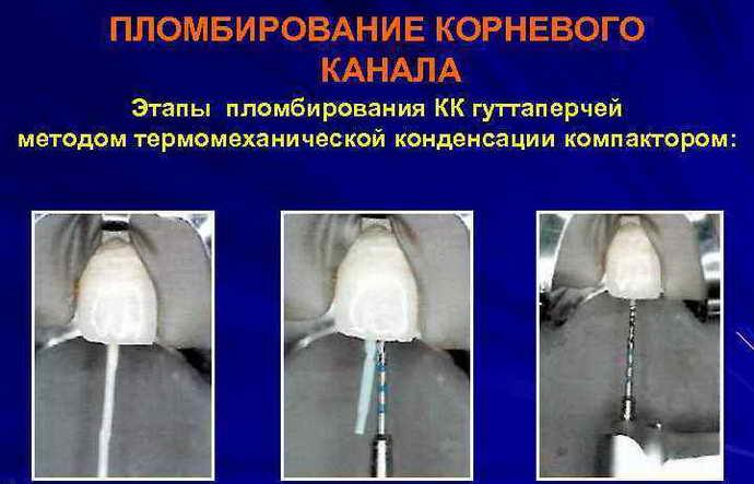 Пломбировать зубы гуттаперчей очень сложно