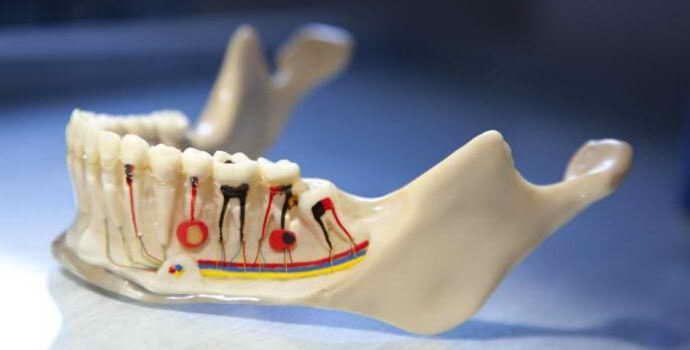 Пломбирование зубов гуттаперчевыми штифтами &#8211, лечение, недостатки и плюсы