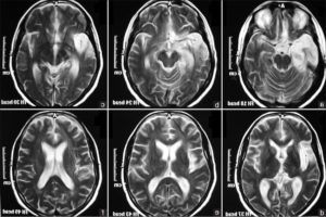 Мозг на снимках