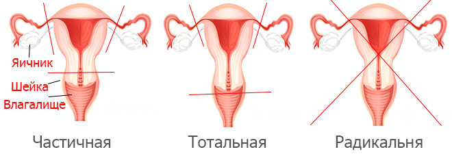 Оптимальным видом операции при данной патологии является тотальная гистерэктомия. Производится удаление матки вместе с шейкой и придатками