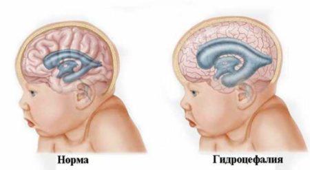 Развитие токсоплазмоза при беременности: какие могут быть последствия для плода