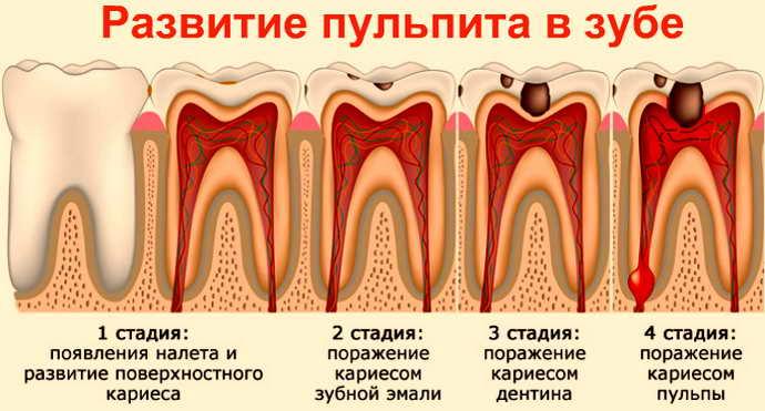 пульпит, появление кариеса и боль языка сбоку