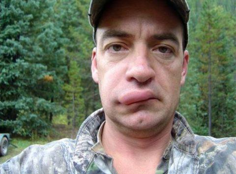 Последствия укуса осы верхнюю губу спустя один час