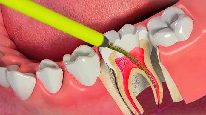Для чего это необходимо депульпирование зуба