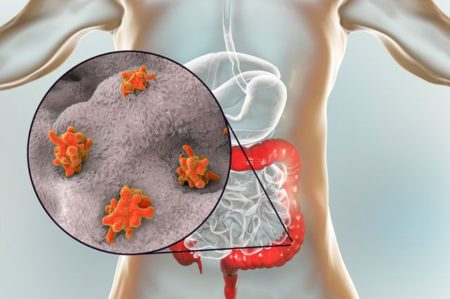Признаки присутствия у человека подкожных паразитов: симптомы и методы лечения