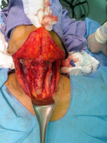 Проведение оперативного вмешательства с целью удаления части щитовидки