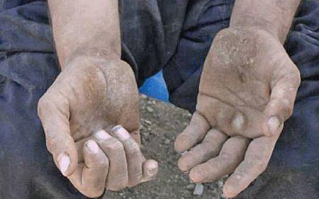 Современные способы проведения анализа кала на наличие простейших в организме человека