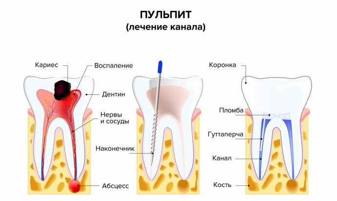 болит зуб с пломбой