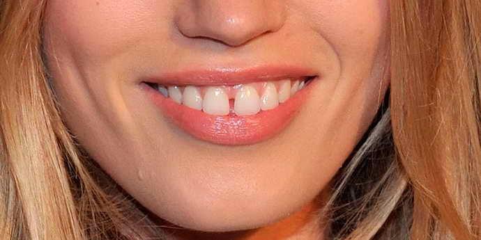 крупная диастема, щербинка между зубами