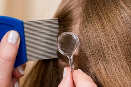 Откуда могут появиться вши и какие заболевания они могут передавать человеку