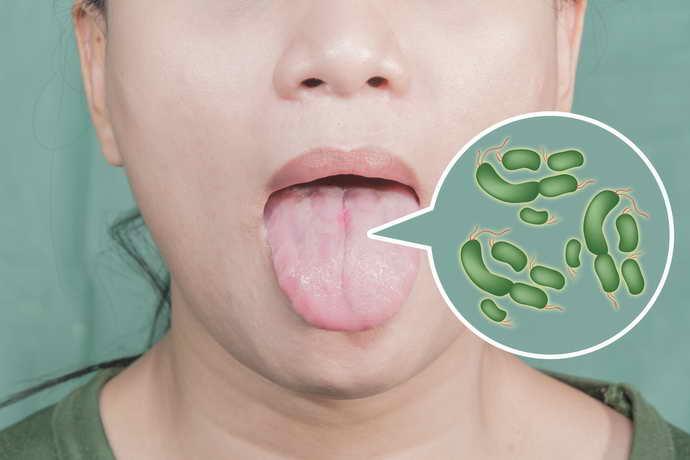 Симптоматика поражения языка