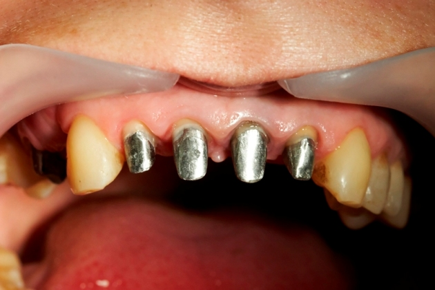 подготовка к протезированию передних зубов