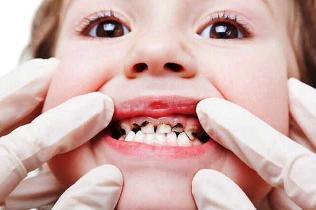 нелеченный кариес - причина периодонтита у детей