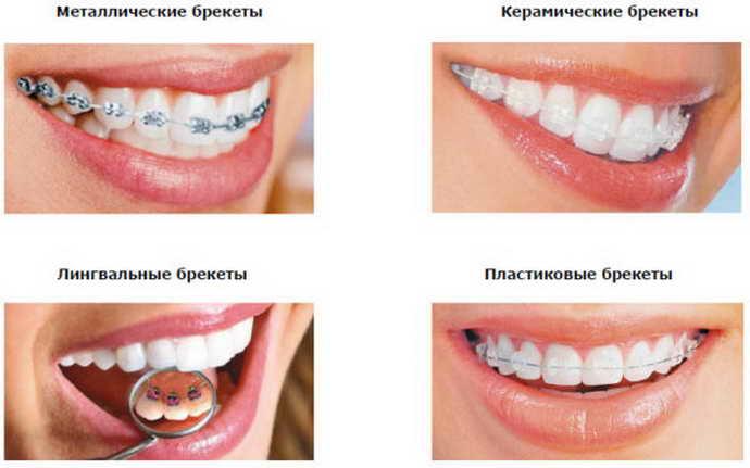 Фиксация ортодонтических пластинок в несколько этапов