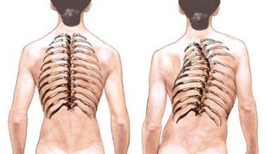 грудной кифоз позвоночника