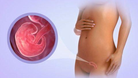Симптомы замершей беременности.