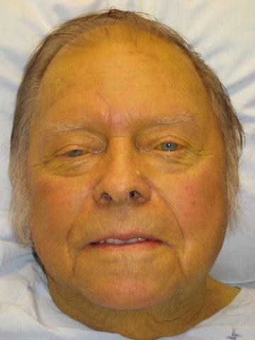 Симптом выраженной желтухи у пациента