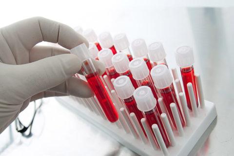 Постановка диагноза невозможна без проведения анализов