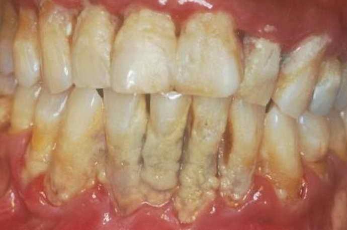 отложение зубного камня и пришеечный кариес