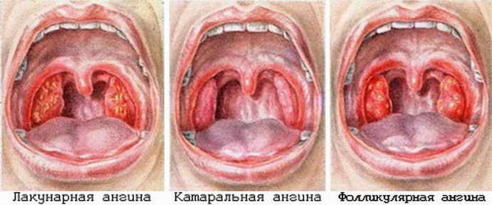ангина и язвы на языке