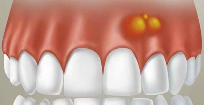 отек после удаления зуба является физиологическимсостоянием