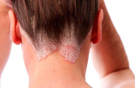Причины появления вшей на ресницах: как от них избавиться