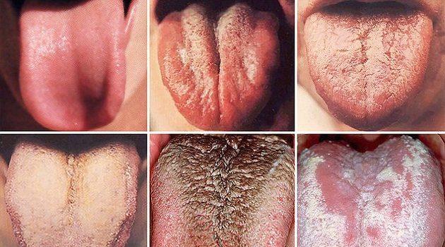 цвет языка и болезни