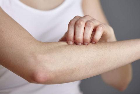 Если есть зуд – чесать нельзя, помочь смогут специальные кремы после укусов насекомых