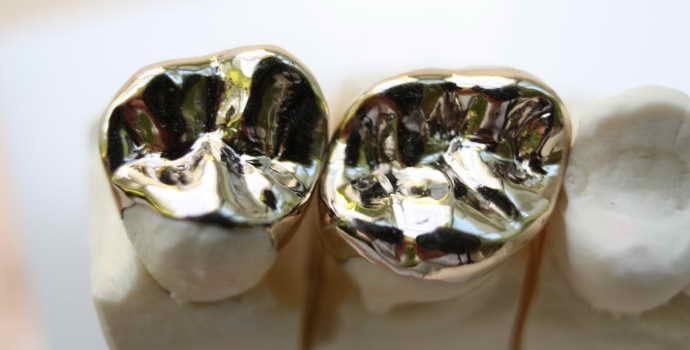 Преимущества протезирования металлическими коронками с напылением