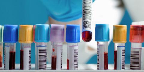 Лабораторные тесты помогут разобраться