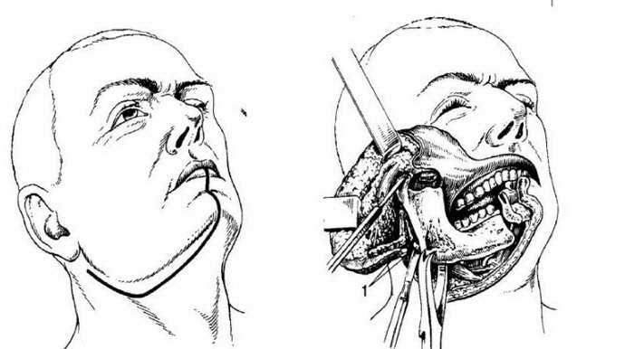 резекция челюсти