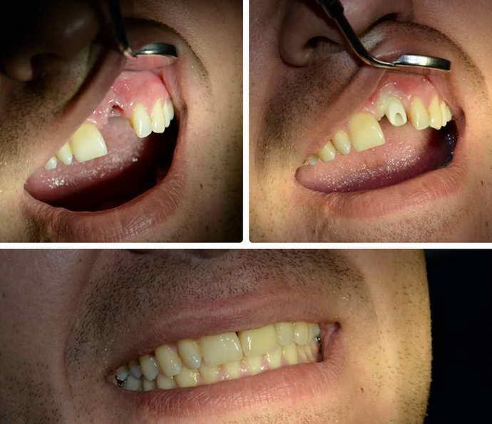 Показания к установке съемного протеза на один зуб