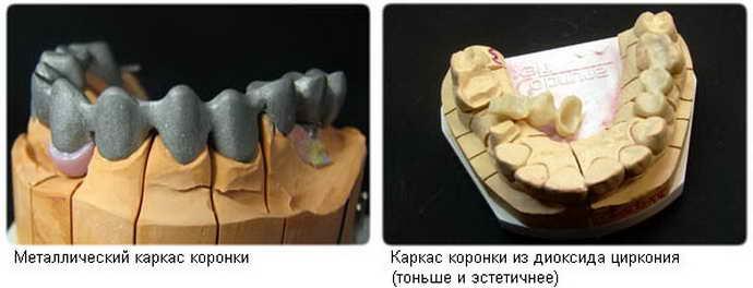 Металлокерамические коронки с каркасом