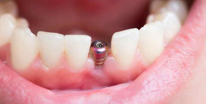Стоит ли устанавливать импланты при пародонтозе, будет ли эффект