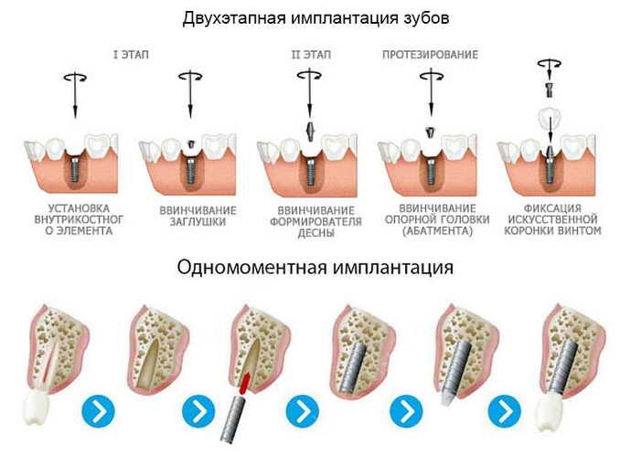 Коронки для имплантации