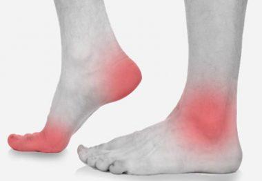 заболевания суставов стопы