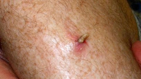 Личинка овода в ноге человека