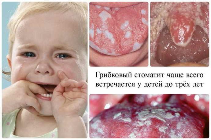 Грибковый стоматит у детей