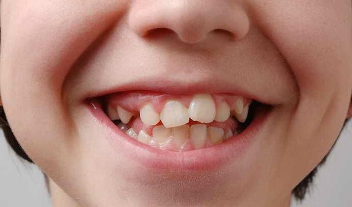 Аномальное формирование зубного ряда у детей