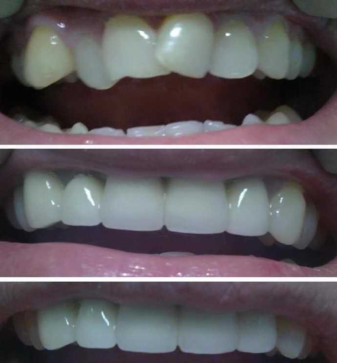 исправление кривых зубов винирами результат